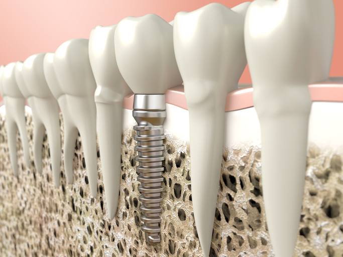 Rendering of dental implants from Ford Dental Group in Huntington Beach, CA