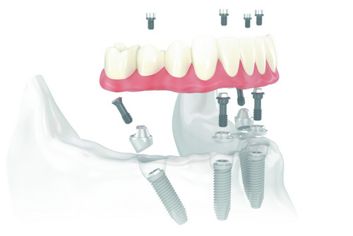All-on-4 works by placing four dental implants to support your replacement teeth.